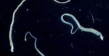 Ленточные глисты и их основные виды - lifemed24.com