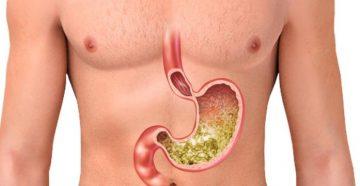 Повышенная кислотность желудочного сока - lifemed24.com